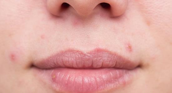 再発性化粧品皮膚炎