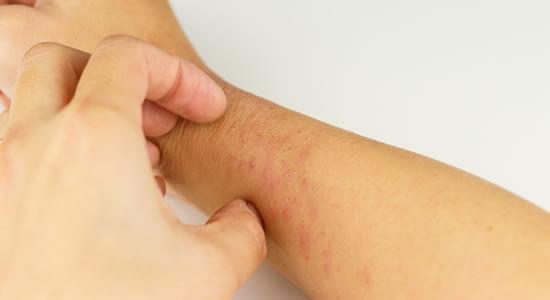 難治性アトピー性皮膚炎