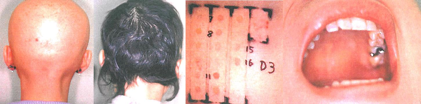 重症、難治性の円形脱毛症